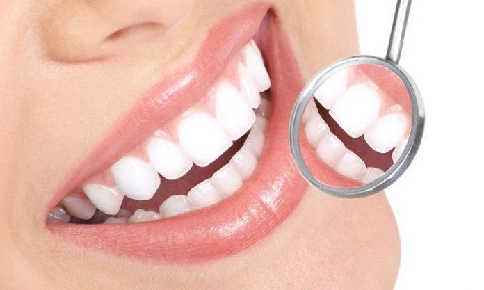 Làm răng sứ ở đâu tốt nhất
