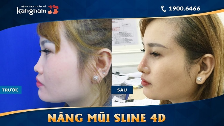 Bệnh viện thẩm mỹ Kangnam là địa chỉ nâng mũi đẹp ở Sài gòn